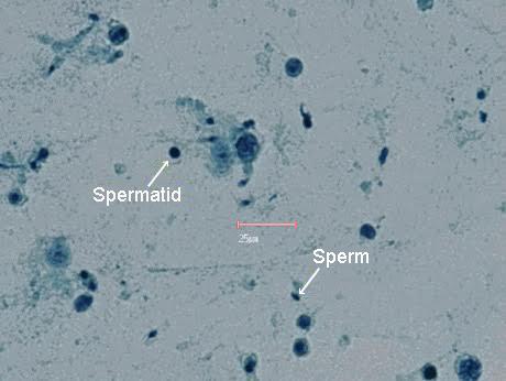 sperma-cherez-mikroskop